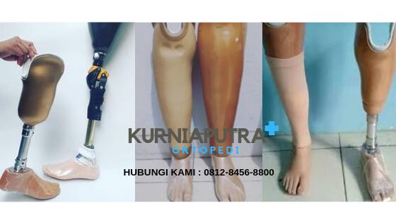 jual kaki palsu bawah lutut