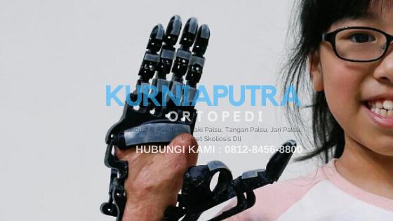 harga tangan palsu bionik