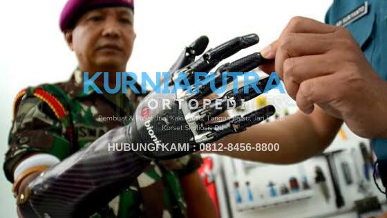 jual tangan palsu robotik