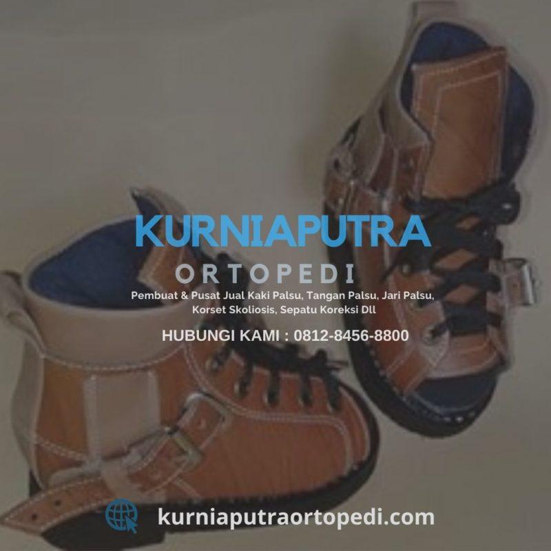 sepatu ortopedi untuk bayi